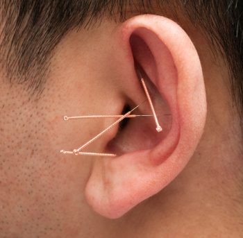 Stick Needles In Ear To Lose Belly Fat
